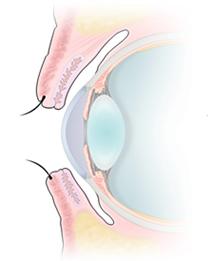 正常な眼瞼