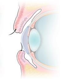 眼瞼内反症