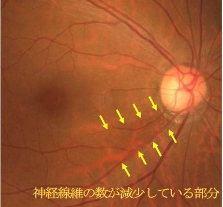 神経線維層欠損