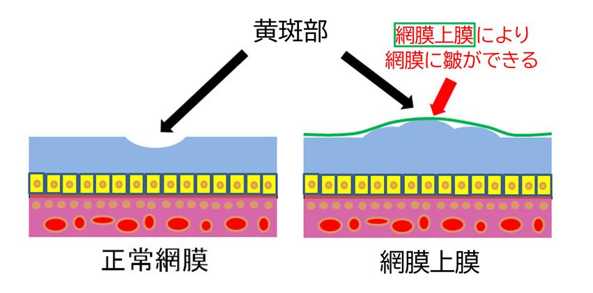 網膜上膜図解