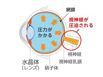 視神経の圧迫