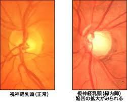 視神経乳頭陥凹拡大