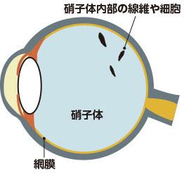 飛蚊症の原因:眼球断面図