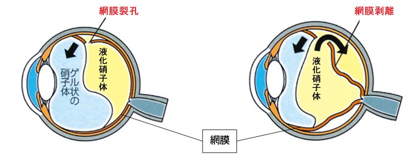 網膜裂孔と網膜剥離