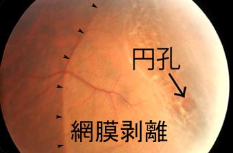 萎縮性円孔による網膜剥離